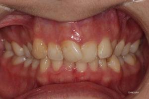 Ortodontilise ravi näide 1. enne ravi