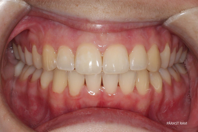 Ortodontilise ravi näide 1. pärast ravi