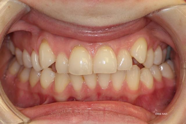Ortodontiline ravi näide 2 enne