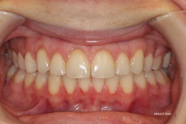Ortodontiline ravi näide 2 pärast