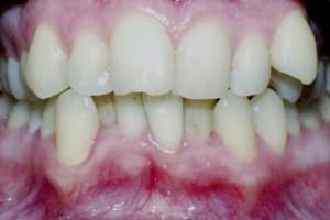 Teeth before orthodontic treatment