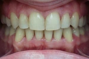 Hambad peale ortodontilist ravi